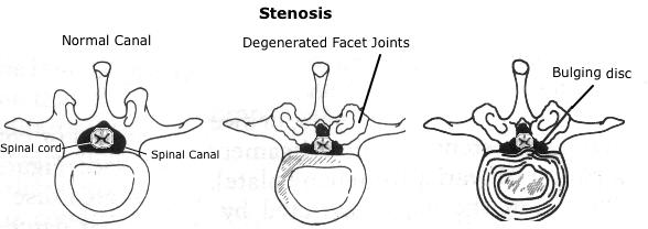 back pain - symptoms - cause